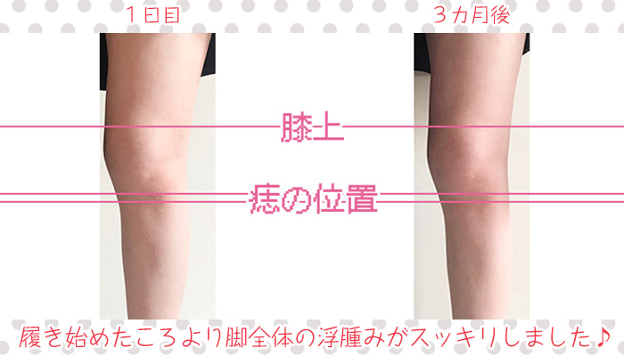着圧レギンスを3カ月履き続けた時の浮腫みケア効果